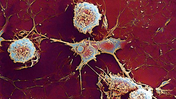 Onemocnění roztroušenou sklerózou